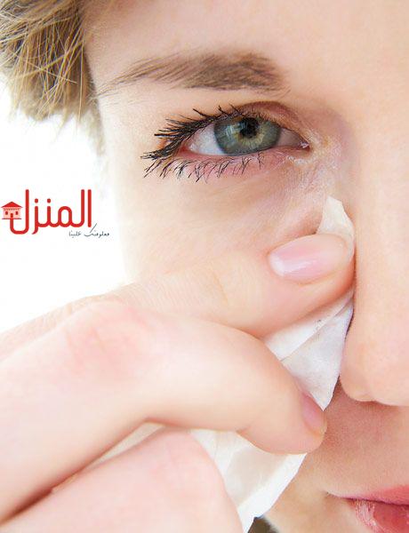 اسباب التهاب العين وطرق العلاج