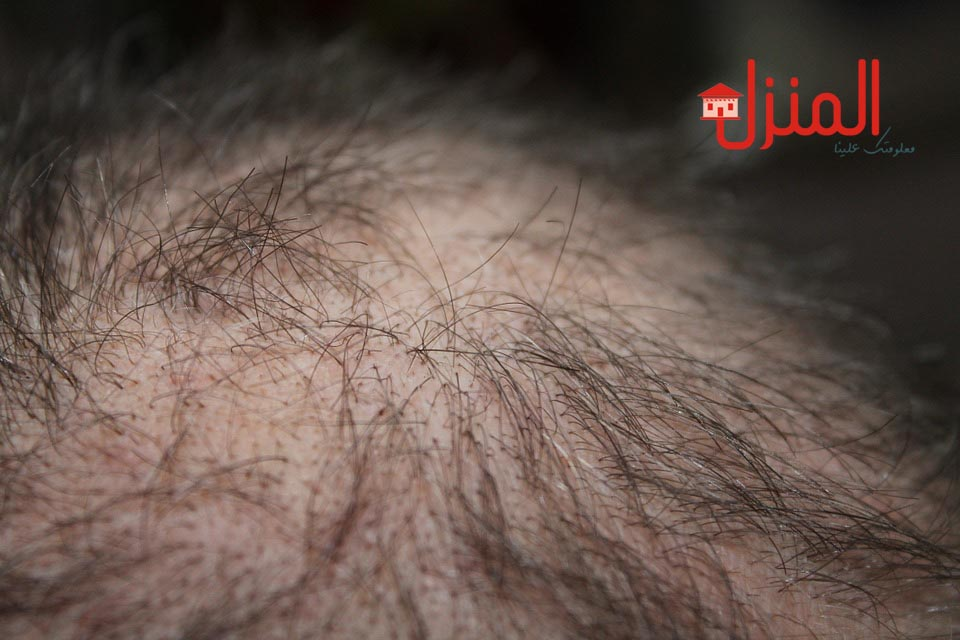 تساقط الشعر وعلاجه
