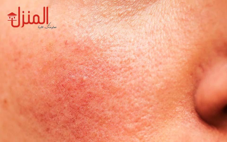 الأمراض الجلدية الأكثر انتشارا بالصيف