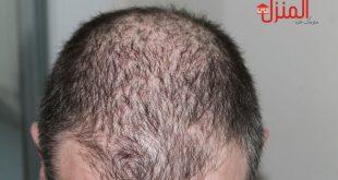 هل عشبة الوسمة تسبب تساقط الشعر